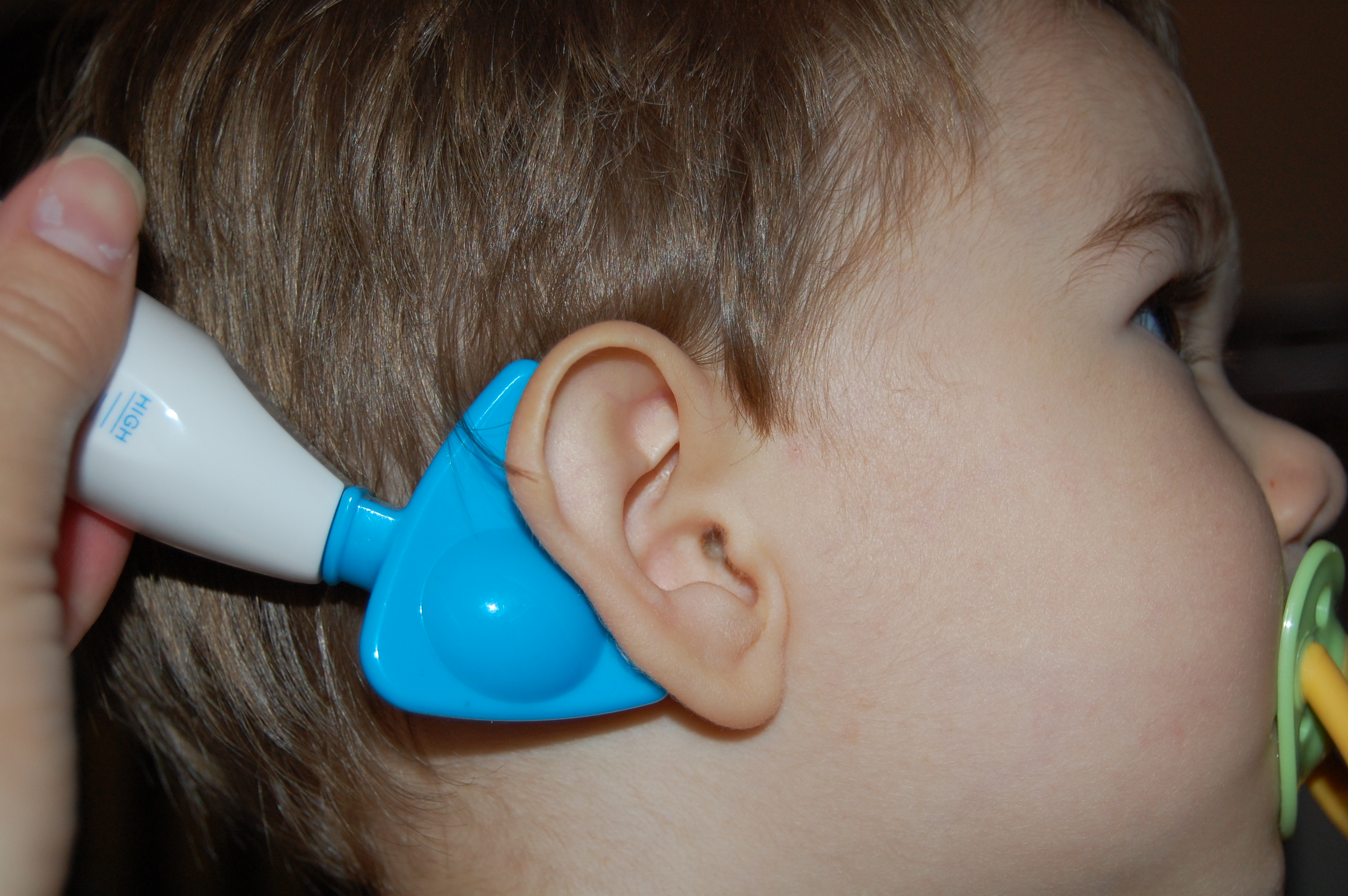Как домашних условиях вылечить ухо
